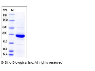 Human ANXA5 / Annexin Ⅴ / Annexin A5 Protein