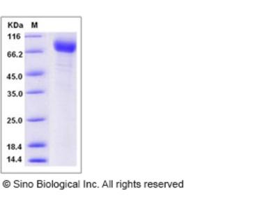 Human ANTXR1 Protein (Fc Tag)