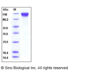 Mouse CD62L / L-Selectin / SELL Protein (His & Fc Tag)
