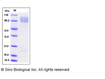 Mouse ADAM15 / MDC15 Protein (His Tag)