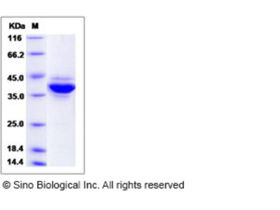 Human Jumping Translocation Breakpoint / JTB Protein (Fc Tag)