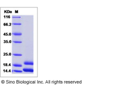 Human CCL2 / MCP-1 / MCP1 Protein (His Tag)