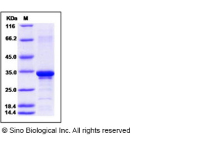 Human Beta-amyloid 38 / Beta-APP38 Protein (aa 672-709, His & GST Tag)