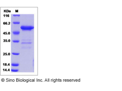 Mouse MBL-2 / MBL Protein (Fc Tag)