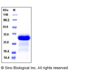 Human CCL8 / MCP-2 Protein (SUMO Tag)
