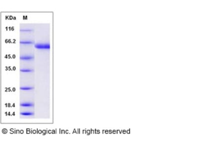 Human sialate O-acetylesterase / SIAE Protein (His Tag)