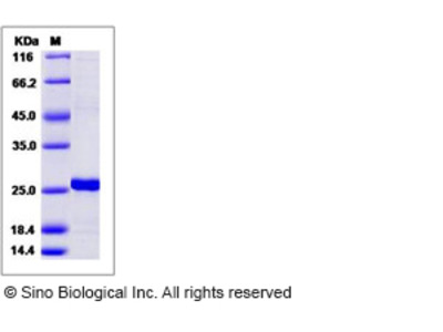 Human RGS5 / Regulator of G-protein signaling 5 Protein (His Tag)