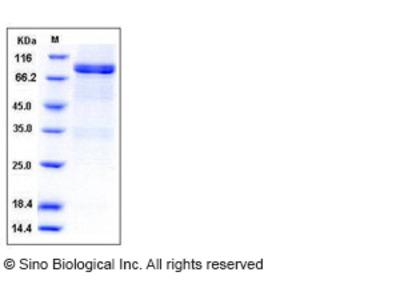 Human Lck Kinase Protein (GST Tag)