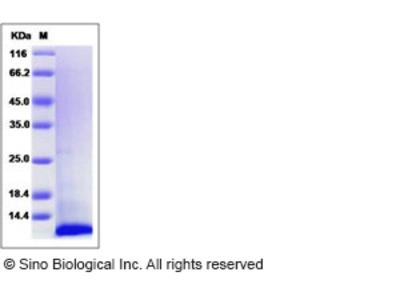 Human I-309 / CCL1 / TCA-3 Protein