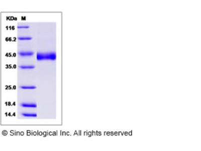 Human CHST11 / C4ST-1 Protein (His Tag)