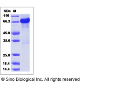 Human GAD65 / GAD2 / GAD-2 Protein (GST Tag)