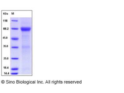 Human ADCYAP1R1 Protein (Fc Tag)