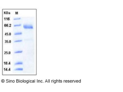 Human SMOC1 Protein (His Tag)