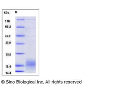 Human XCL2 Protein (His Tag)