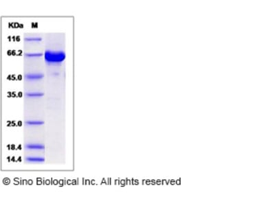 Mouse AKT3 Protein (aa 106-479, His & GST Tag)
