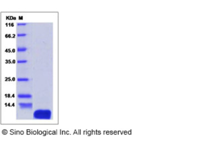 Human ATOX1 / HAH1 Protein (His Tag)