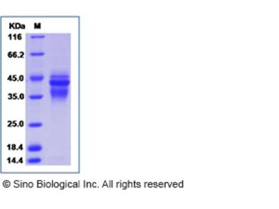 Human IL-12 (IL12A & IL12B Heterodimer) Protein