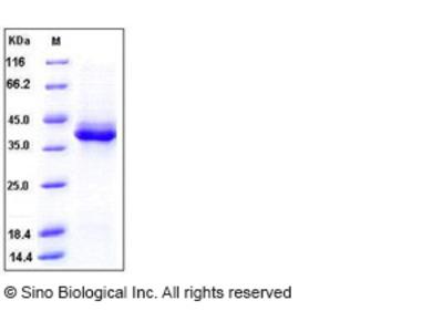 Human S100B Protein (Fc Tag)