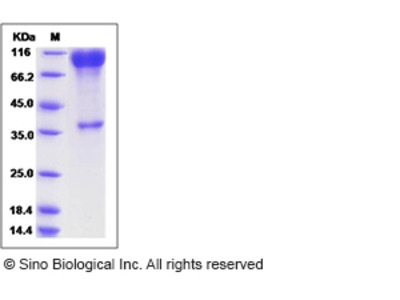 Rat SLC3A2 / CD98 Protein (Fc Tag)