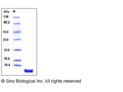 Human S100P / S100E Protein