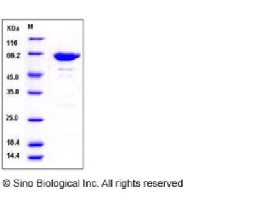 Mouse Leukotriene A4 Hydrolase / LTA4H Protein (His Tag)