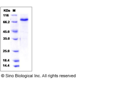 Mouse / Rat / Human SMAD3 Protein (His & GST Tag)