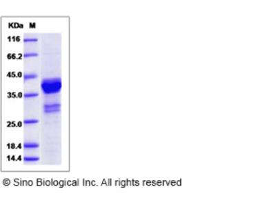 Human MKI67 Protein (GST Tag)