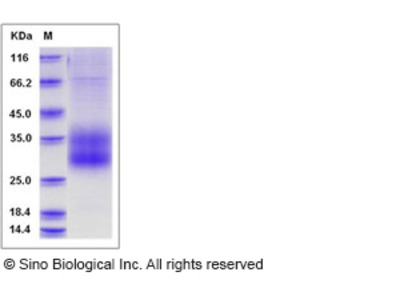 Human SCN3B Protein (His Tag)
