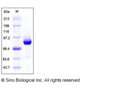 Human AKT3 Protein (GST Tag)