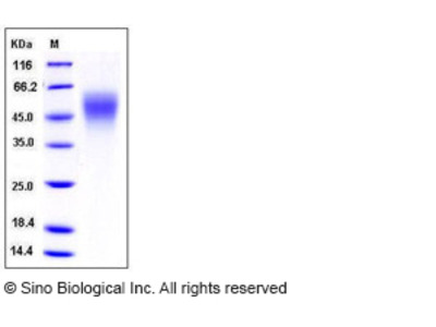 Human ICAM-2 / CD102 Protein (His Tag)