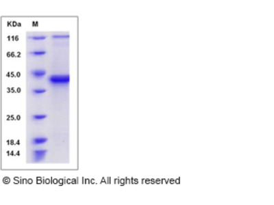 Mouse S100B / S100beta Protein (Fc Tag)