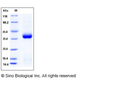 Mouse CLEC10A / MGL1 / CD301 Protein (His Tag)