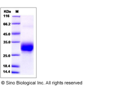 Mouse CREG / CREG1 Protein (His Tag)