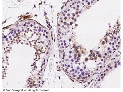 PKCA / PRKCA Antibody, Rabbit PAb, Antigen Affinity Purified
