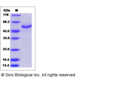 Mouse Testican-3 / SPOCK3 Protein (His Tag)