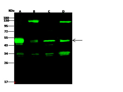 PRKAR1A / PRKAR1 / PKR1 Antibody, Rabbit PAb, Antigen Affinity Purified