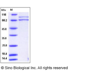 Human XRCC5 & XRCC6 Heterodimer Protein
