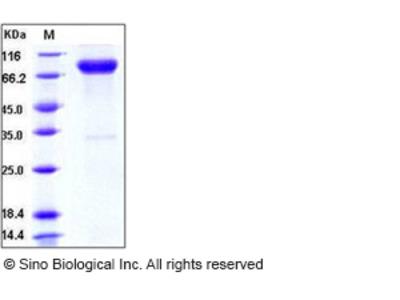 Human IL-1R8 / IL1RAPL1 Protein (Fc Tag)