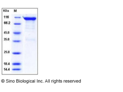 Human Semaphorin 4A / SEMA4A / Semaphorin B Protein (Fc Tag)
