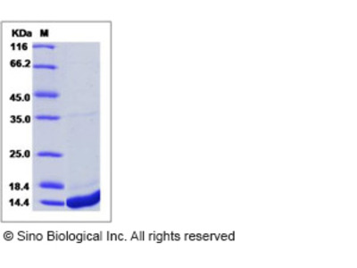 Human S100A8 / CAGA / p8 Protein (His Tag)