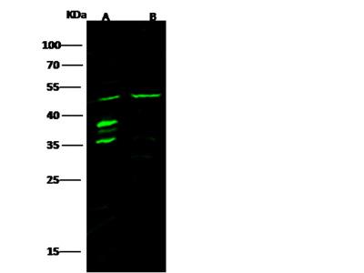 p63 Antibody, Rabbit PAb, Antigen Affinity Purified