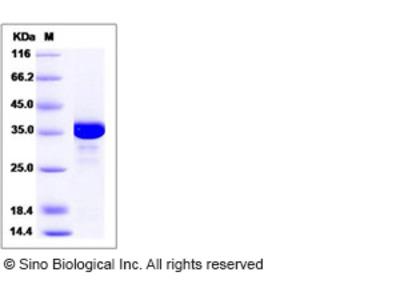 Human AKR1C2 Protein (His Tag)