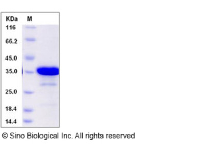 Human SAA4 Protein (GST Tag)