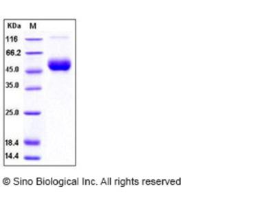 Human IL-1R8 / IL1RAPL1 Protein (His Tag)