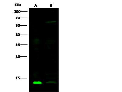 Galectin-1 / LGALS1 Antibody, Mouse MAb