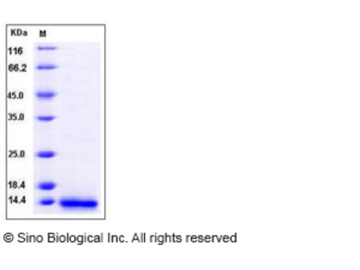 Human MCP-3 / CCL7 Protein (His Tag)