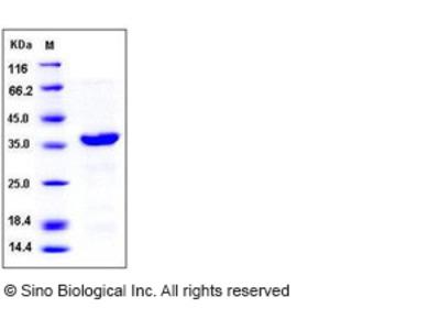 Human AIMP1 / EMAP2 / SCYE1 Protein (His Tag)