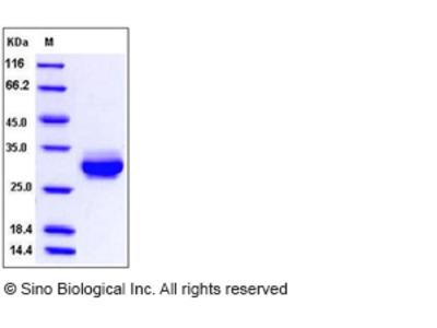 Rat CRP / C-Reactive Protein (His Tag)