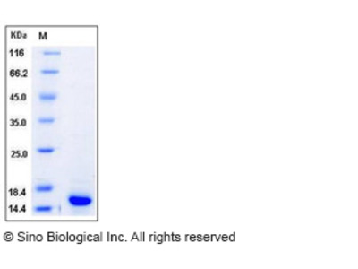 Human S100A9 / CAGB / p14 Protein (His Tag)
