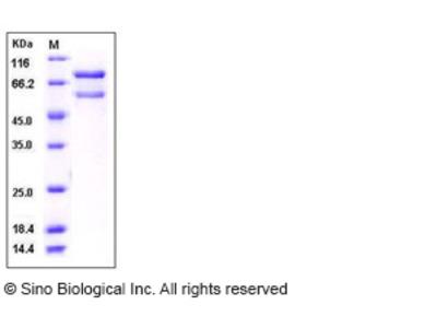 Human CAMK2B / CaMKII-beta Protein (His & GST Tag)